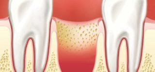 Что вызывает потерю кости в челюсти?