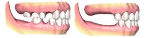 Read more about the article Атрофируется кость под съемным протезом – что делать?