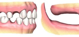 Атрофируется кость под съемным протезом – что делать?