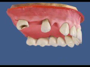 Read more about the article Атрофия челюстной кости – что это? Симптомы и последствия для здоровья