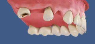 Атрофия челюстной кости – что это? Симптомы и последствия для здоровья