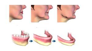 Read more about the article Атрофия костной ткани челюсти – способы лечения и восстановления зубов