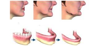 Атрофия костной ткани челюсти – способы лечения и восстановления зубов