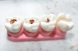Read more about the article Причины появления коричневых пятен на зубах