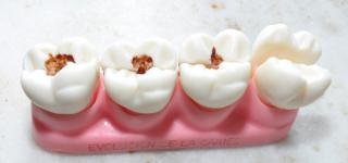 Причины появления коричневых пятен на зубах