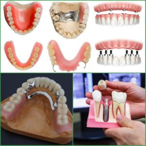 Read more about the article Из чего сделаны зубные протезы?