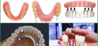 Из чего сделаны зубные протезы?